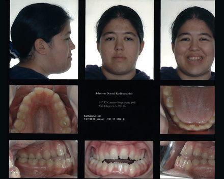 Smile Gallery Patient Before